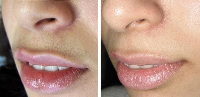 Шугаринг лица (до и после)