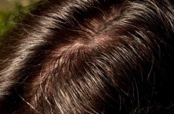 что делать если волосы быстро жирнеют